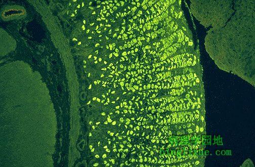 胃黏膜壁细胞抗壁细胞抗体(免疫荧光)
