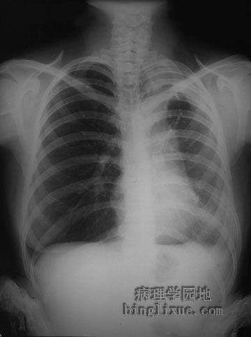 X线显示右侧气胸、心影左移