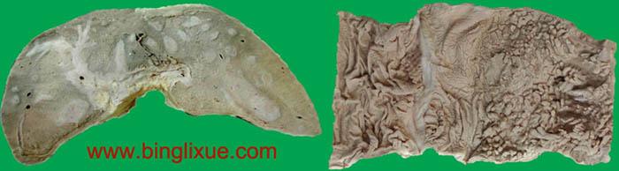 血吸虫病(schistosomiasis)的主要脏器病理变化及临床